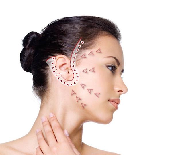 technique lifting visage