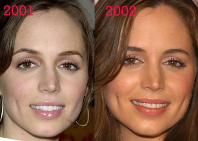 esthetique-lifting-visage-lift-acide-hyaluronique