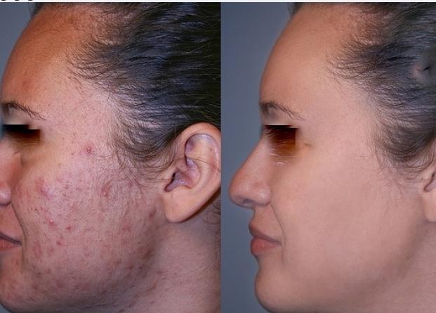 peelin esthetique enlever taches cicatrices