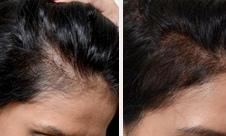 esthetique-prp-cheveu-resultat-avant-apres