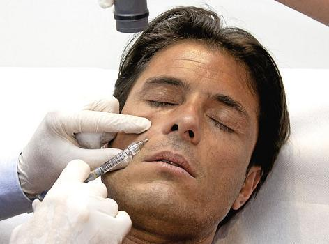 médecine esthetique homme-acide hyaluronique injection