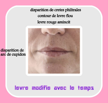 lèvres pulpeuses avant