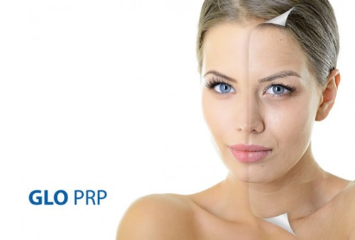 esthetique prp glo women